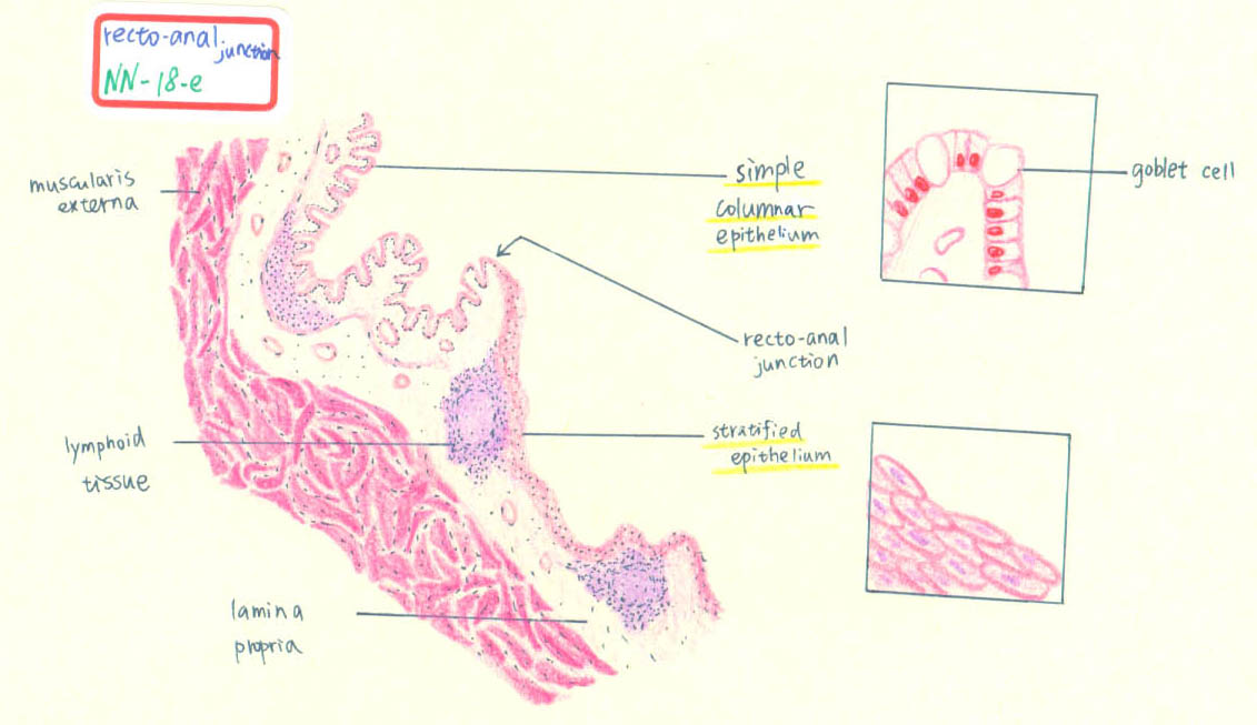 Hyperkeratotic dermis of anal canal